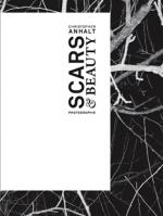 Scars & Beauty